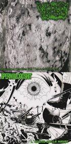 PULMONARY FIBROSIS Bronchial Cavities Fill the Acidulous Pus / L'Occhio della Madre album cover