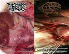 PULMONARY FIBROSIS Intestinal Disorder on Muched Spasms / Acute Venous Thrombosis album cover
