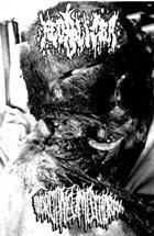 FECALIZER Fecalizer/ Hydropneumothorax album cover
