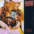 SUBLIME CADAVERIC DECOMPOSITION Untitled / Serum Sickness Syndrome album cover